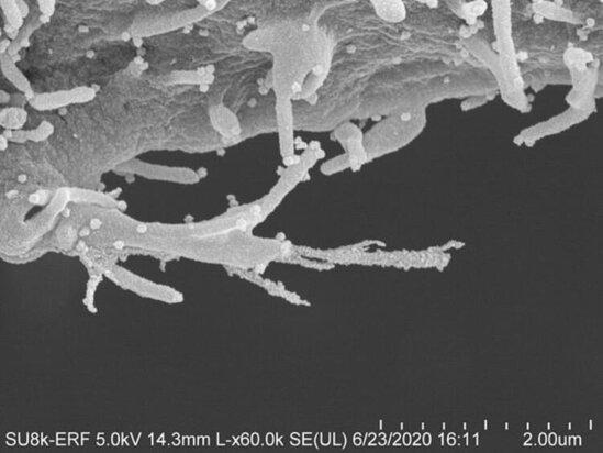 Son dəqiqə: Koronavirusun yeni fotosu ortaya çıxdı! -FOTO