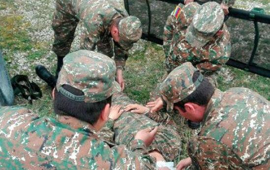 Ermənistan müharibədəki yaralılarının sayını açıqladı