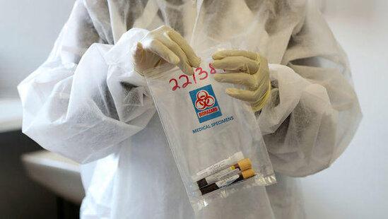 Rusiya klubunda koronavirusa kütləvi yoluxma qeydə alındı